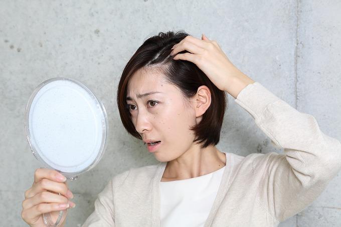 あなたも気を付けて!最近急増!!女性の薄毛の原因って?