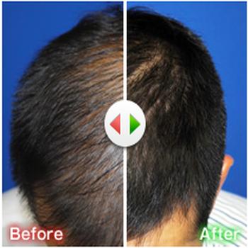 AGA(薄毛)治療の成功率97%!「ゴリラクリニック」でもう薄毛に悩まない!